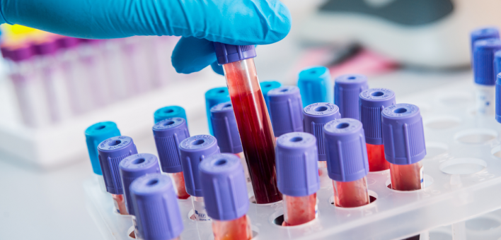 Generic photograph of blood tests in vials in a laboratory